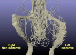 Quantification of Three Dimensional Vascular Network