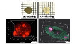 Nano-medicine and Theranostics